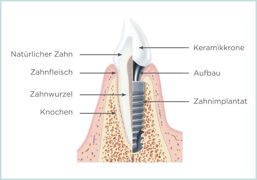 Implantatbehandlung: Vergleich natürlicher Zahn - implantatgetragene Prothese